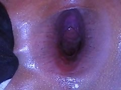 big anal gaping2